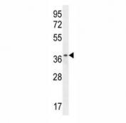 ZNF322B antibody western blot analysis in HL-60 lysate