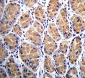 TOR2A antibody immunohistochemistry analysis in formalin fixed and paraffin embedded human stomach tissue.