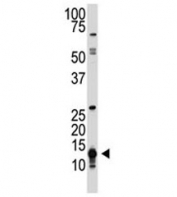 The SUMO1 antibody used in western blot to detect SUMO1 in human HL-60 cell lysate