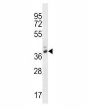PGA4 antibody western blot analysis in WiDr lysate.