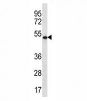 APOBEC3G antibody western blot analysis in K562 lysate. Predicted molecular weight: ~46kDa.
