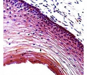 Puma antibody immunohistochemistry analysis in formalin fixed and paraffin embedded human cervix tissue.