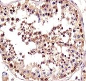 TSPY antibody immunohistochemistry analysis in formalin fixed and paraffin embedded human testis tissue.