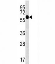 ZFP64 antibody western blot analysis in uterus tissue lysate