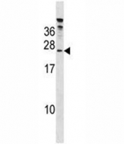 HTATSF1 antibody western blot analysis in 293 lysate.