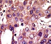 IHC analysis of FFPE human hepatocarcinoma stained with the AMFR antibod