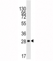 Western blot analysis of CCND1 antibody and mouse lung tissue lysate. Predicted molecular weight: 32-36 kDa.