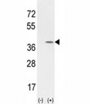 Western blot analysis of CCND1 antibody ans 293 cell lysate (2 ug/lane) either nontransfected (Lane 1) or transiently transfected with the CCND1 gene (2). Predicted molecular weight: 32-36 kDa.