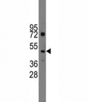 Western blot analysis of Ihh antibody and HL-60 lysate