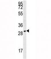 TPSAB1 antibody western blot analysis in 293 lysate.