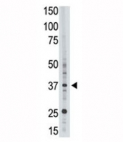 EPR1 antibody used in western blot to detect EPR1 in HL-60 cell lysate