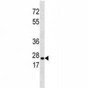 ERAB antibody western blot analysis in 293 lysate