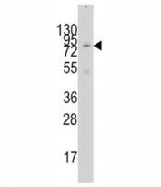 Western blot analysis of GCN5 antibody and 293 lysate. Expected molecular weight ~94 kDa.