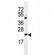 Bax antibody western blot analysis in HL-60 lysate