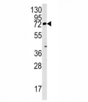 Western blot analysis of Rex1 antibody and mouse lung tissue lysate