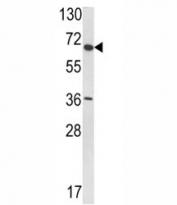 Western blot analysis of VDU1 antibody and T47D lysate.