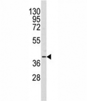 Western blot analysis of AKR1A1 antibody and Y79 lysate. Predicted molecular weight: ~37kDa.