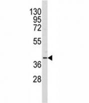 Western blot analysis of AKR1A1 antibody and Y79 lysate. Predicted molecular weight: ~37kDa.