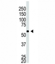 Western blot testing of BACE2C antibody and A549 cell lysate