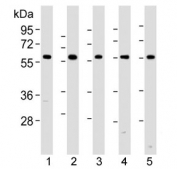 Western blot analysis of lysate from (1) HeLa, (2) rat PC-12, (3) Ramos, (4) mouse NIH3T3 cell line, (5) mouse brain tissue lysate using Pyruvate Kinase/ PKM2 antibody at 1:1000. Predicted molecular weight ~58 KDa.