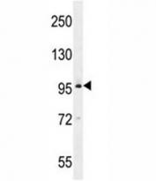 BRDT western blot analysis in MDA-MB435 lysate
