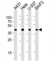 Western blot analysis of lysate from A431, HeLa, U-937, BA/F3 cell lines using PGK1 diluted at 1:1000 for each lane. Expected/observed molecular weight ~44kDa.