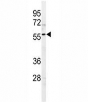 Western blot analysis of SPHK1 antibody and 293 lysate. Predicted molecular weight: ~43/51/44kDa (isoforms 1/2/3).
