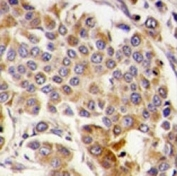 IHC analysis of FFPE human breast carcinoma tissue stained with AMPK antibody