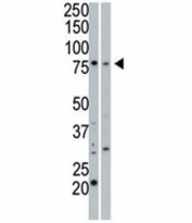 cGKI beta antibody used in western blot to detect cGKIbeta in 293 cell lysate (Lane 1) and mouse small intestine tissue lysate (2).