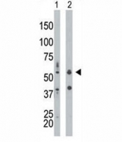 PKR antibody used in western blot to detect PRKR/PKR in mouse liver tissue lysate (Lane 1) and HepG2 cell lysate (2). Predicted molecular weight ~62 kDa but routinely observed at 68-72 kDa.