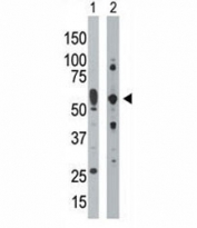 PRKR antibody used in western blot to detect PRKR/PKR in mouse uterus tissue lysate (Lane 1) and HepG2 cell lysate (2). Predicted molecular weight ~62 kDa but routinely observed at 68-72 kDa.
