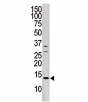 Western blot analysis of DUSP15 antibody and CEM cell line lysate.