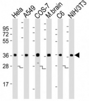 Western blot testing of GAPDH antibody at 1:8000 dilution. Lane 1: HeLa lysate; 2: A549; 3: COS-7; 4: mouse brain; 5: rat C6; 6: NIH3T3; Predicted band size : 36 kDa.