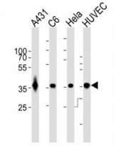 GAPDH antibody WB at 1:1000 dilution. Lane 1: A431 lysate; 2: rat C6 lysate; 3: HeLa lysate; 4: HUVEC lysate; Predicted band size : 36 kDa.