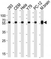Western blot analysis of lysate from 293, CEM, HeLa, Y79, rat PC-12 cell line, mouse brain tissue lysate using TUBB / beta-Tubulin antibody at 1:1000 for each lane.