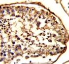 IHC analysis of FFPE human testis stained with beta-Tubulin antibody