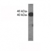 Western analysis of extracts from HDMEC cells using VEGFC antibody. Predicted molecular weight ~46 kDa.