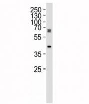 Western blot analysis of 293 lysate using SET07 antibody at 1:1000.