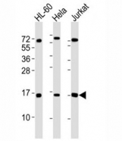 Western blot testing of SUMO1 antibody at 1:4000 dilution. Lane 1: HL-60 lysate; 2: HeLa lysate; 3: Jurkat lysate. Predicted molecular weight: 12-15 kDa