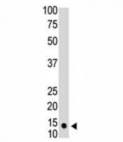 The SUMO1 antibody used in western blot to detect SUMO1 in HL-60 cell lysate. Predicted molecular weight: 12-15 kDa