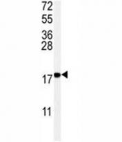 Western blot analysis of UBC9 antibody and Ramos lysate