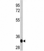 Western blot analysis of recombinant protein with LIN28A antibody