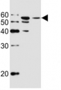 Western blot analysis of lysate from MCF-7, T47D cell line (left to right) using ALDH6A1 antibody at 1:1000 for each lane. Predicted molecular weight: ~58kDa.