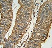 ALDH1A1 antibody immunohistochemistry analysis in formalin fixed and paraffin embedded human colon carcinoma.