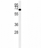 ACOX1 antibody western blot analysis in K562 lysate (15ug/lane). Predicted molecular weight ~74 kDa.