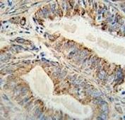 Anti-AKT2 antibody immunohistochemistry analysis in formalin fixed and paraffin embedded human prostate carcinoma.