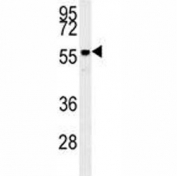 Anti-AKT2 antibody western blot analysis in mouse brain tissue lysate. Predicted molecular weight: ~56kDa.