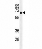AMPK alpha antibody western blot analysis in K562 lysate.