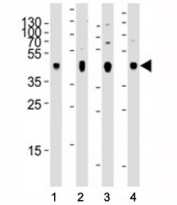 Western blot analysis of lysate from 1) human skeletal muscle, 2) human brain, 3) mouse brain, and 4) rat brain tissue using PDK2 antibody at 1:2000 for each lane. Predicted molecular weight ~46 kDa.