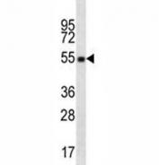 OKT4 antibody western blot of CD4 in CEM lysate